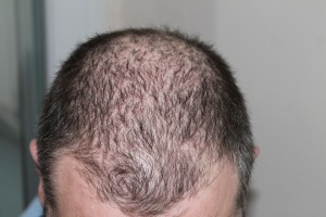 Picture of man coping with hair loss - The Dermatology Clinic