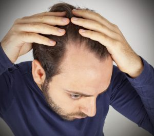 Image of a man examining his scalp