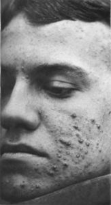 A man's right side facial profile showing cystic acne