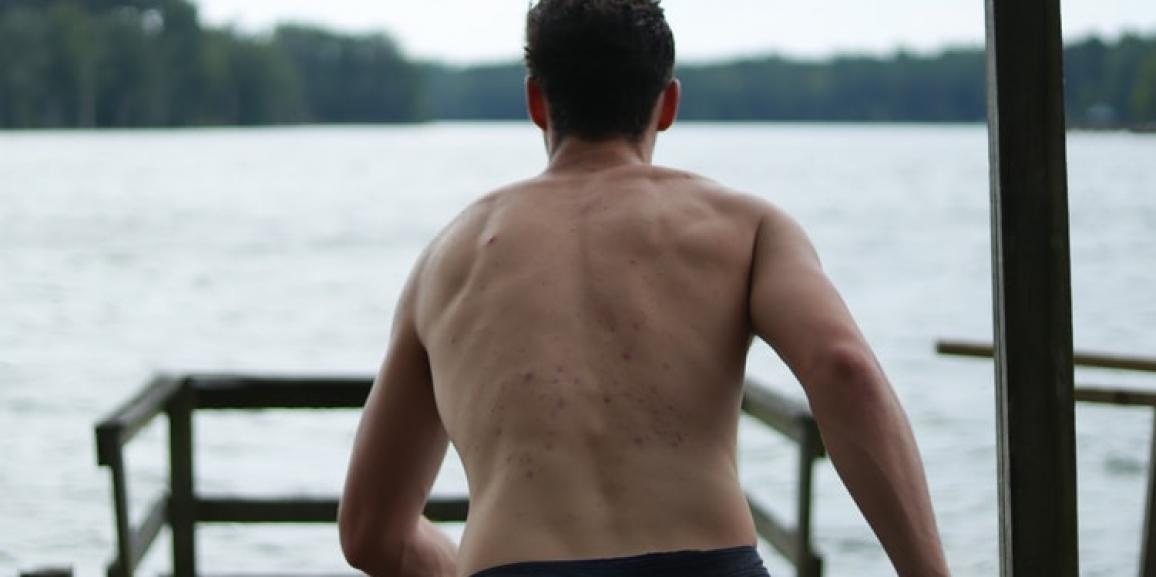 How Do Dermatologists Deal With Back Acne?